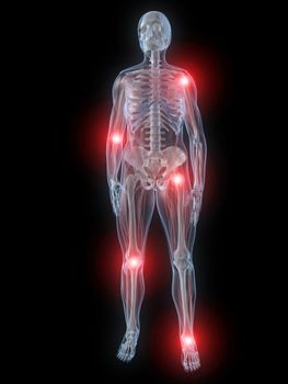 common causes of pain